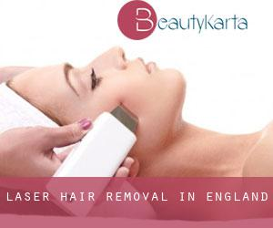 Laser Hair removal in England