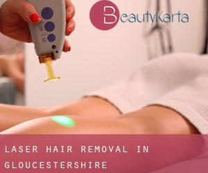 Laser Hair removal in Gloucestershire
