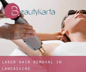 Laser Hair removal in Lancashire