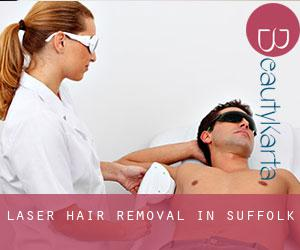 Laser Hair removal in Suffolk