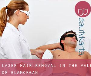 Laser Hair removal in The Vale of Glamorgan