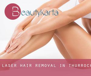 Laser Hair removal in Thurrock