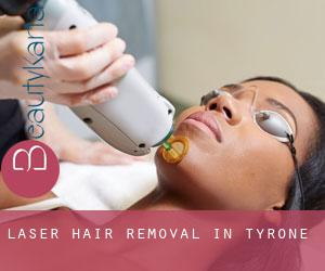 Laser Hair removal in Tyrone