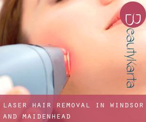 Laser Hair removal in Windsor and Maidenhead